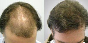 greffe-de-cheveux-Tunisie